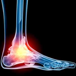 ankle joint pain