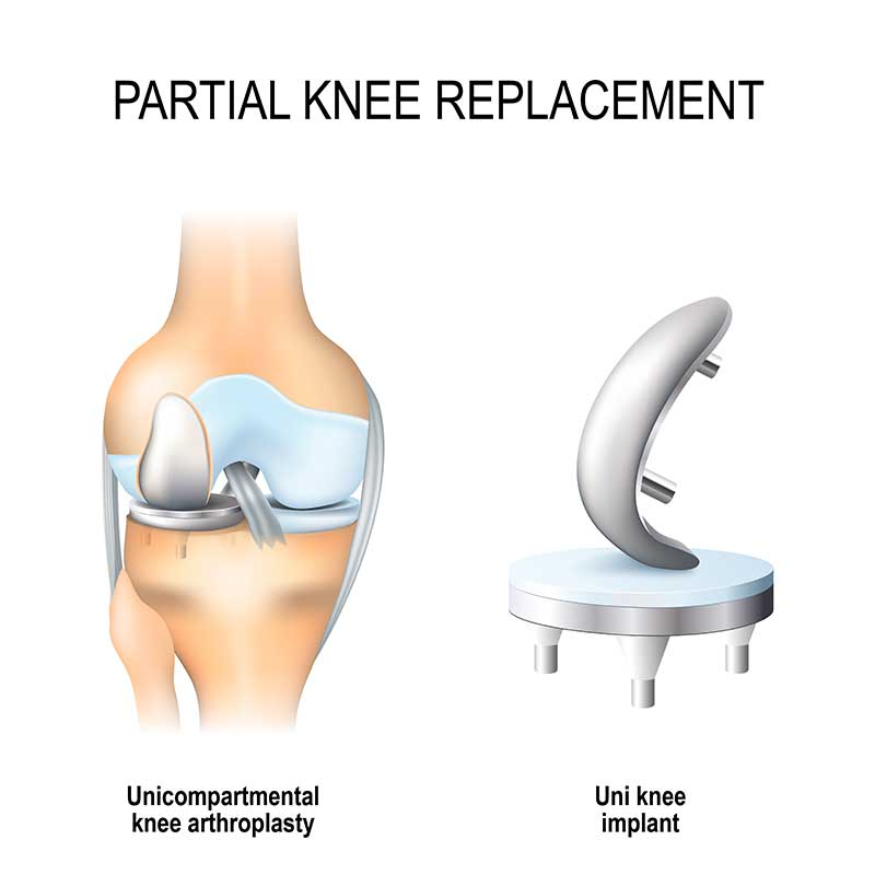 partial knee replacement benefits