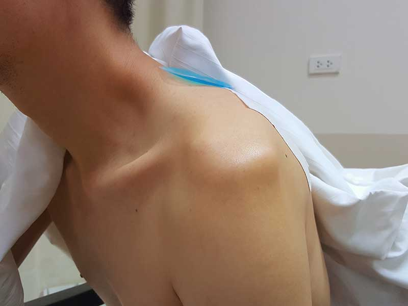 Total shoulder replacement in chennai, tamil nadu