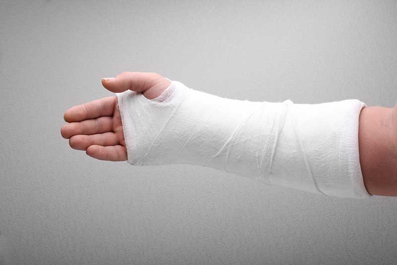 wrist fracture treatment