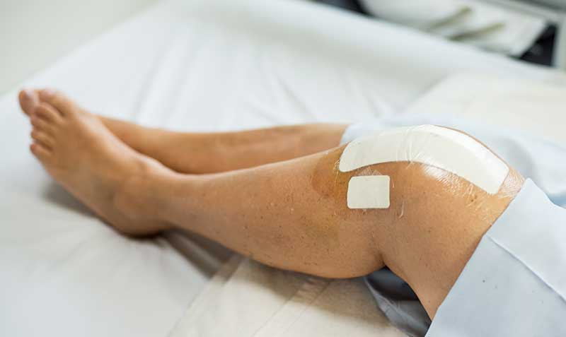 partial knee replacement in chennai