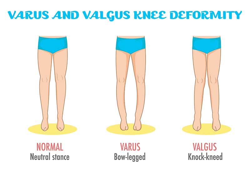 varus and valgus deformity treatment chennai