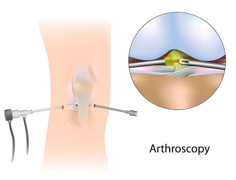 Best Arthroscopic knee surgeon in Tamil Nadu