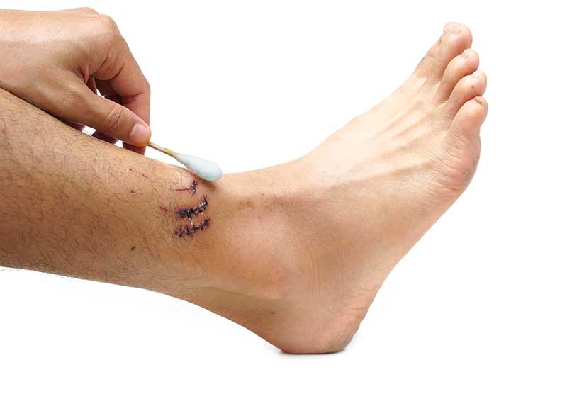 ankle fracture causes